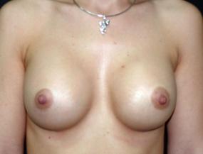 Истории про увеличение груди 2_grud_alexanyan