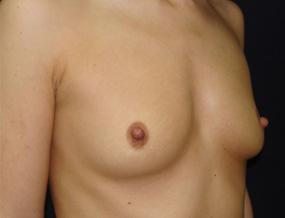 Истории про увеличение груди 3_grud_alexanyan