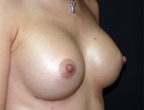 Истории про увеличение груди 4_grud_alexanyan