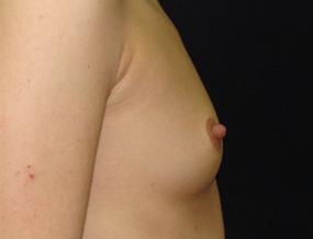 Истории про увеличение груди 5_grud_alexanyan