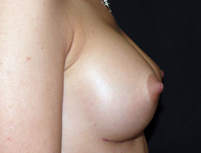 Истории про увеличение груди 6_grud_alexanyan